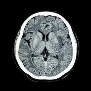 CT scan of brain : show normal human 's brain ( CAT scan ) Stock Photos