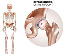 Hip Arthritis Stock Illustration