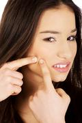 Teenage woman squeezing pimple. Stock Photos