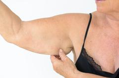 Senior woman showing flabby arm, effect of aging - stock photo