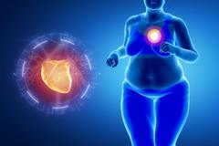 Fat obese woman with heart problem - stock illustration