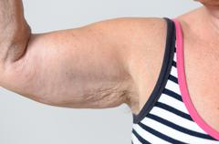Close up Middle Aged Woman Muscles and Underarm Stock Photos