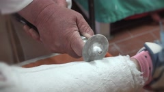 4k Extreme closeup of doctor in hospital clinic cutting and removing gypsum c Stock Footage
