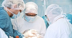 Team of surgeon in uniform perform operation Stock Footage