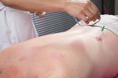 Detail of an acupuncture therapist removing a plastic  globe in a  cupping pr Stock Photos