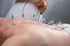 Multiple vacuum cup of medical cupping therapy on human body Stock Photos