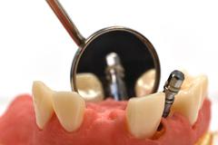 metal dental implant and oral mirror, close up - stock photo