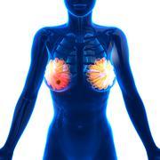 Breast Cancer - Female Anatomy - isolated on white - stock illustration