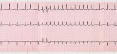 ECG with supraventricular arrhythmias and short paroxysm of atrial fibrillati - stock photo