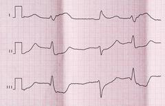 ECG with acute period of myocardial infarction and ventricular premature beat - stock photo