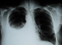 X-ray image of Human Chest Stock Photos