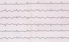 Stock Photo of Emergency Cardiology. ECG with paroxysm correct form of atrial flutter with a