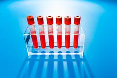 Blood sample in test tube Stock Photos