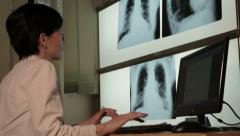 Doctor examining patient, looking x-ray image and writing report,low angle view. Stock Footage