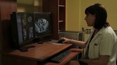 Radiologist looking at monitor screen and analyzing medical image from scanner. - stock footage