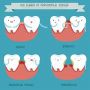 The stages of periodontal disease - stock illustration