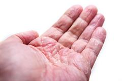 The problem with many people - eczema on hand. Isolated background Stock Photos