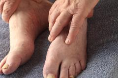 Older man with athletes foot and toenail fungus  - stock photo