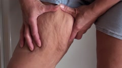 Squeezing and showing cellulite on inner side of thigh 2 Stock Footage
