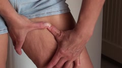 Squeezing and showing cellulite on inner side of thigh 3 Stock Footage