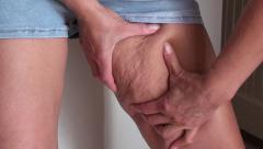Squeezing and showing cellulite on inner side of thigh Stock Footage