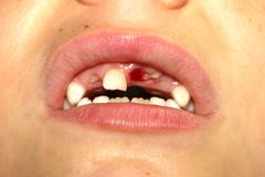 Baby teeth just fallen and new appearing Stock Photos
