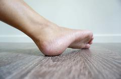 One foot is so dry of a woman Stock Photos