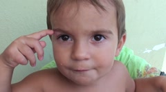 Toddler shows bump on his eyebrow Stock Footage