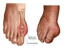 Anatomy of a swollen foot. Stock Illustration