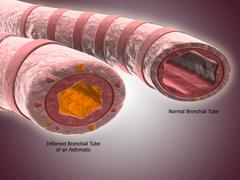 Trachea cross-section showing normal and asthmatic bronchiole. - stock illustration