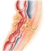 Development of fistula. - stock illustration