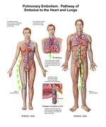 Pulmonary embolism, pathway of embolus to the heart and lungs. - stock illustration