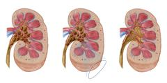Comparison of different sized kidney stones in the human kidney. - stock illustration