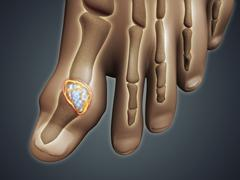 Conceptual image of gout in the big toe. Stock Illustration