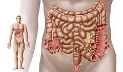 Diverticulitis in the descending colon region of the human intestine. - stock illustration