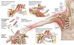 Medical illustration detailing thoracic outlet syndrome. Stock Illustration