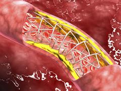 Stock Illustration of Artery cross-section with blood flow, fat plaque and stent deployment.