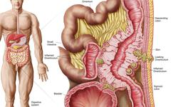Illustration of diverticulosis in the colon. - stock illustration