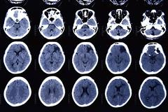 Images from a computerized tomography of the brain Stock Photos