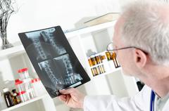 Doctor looking at a x-ray radiography Stock Photos