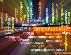 Amputation multilanguage wordcloud background concept glowing - stock illustration