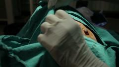 Maxillofacial surgery. Preparing for removal of mole. Sterilization, close up. - stock footage