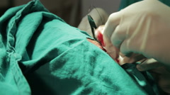 Maxillofacial surgery. Removing mole. Stitching, sting with needle, close up. Stock Footage