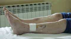 Dermatology. Skin diseases on feet. Treatment for skin infection. Legs close up. - stock footage