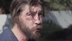 a guy with a beard, battered face and a abrasions, angry - stock footage