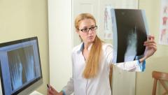 Female doctor looking Injury On X-Ray. Stock Footage