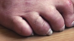 Toes crippled unhealthy dirty dolly macro Stock Footage
