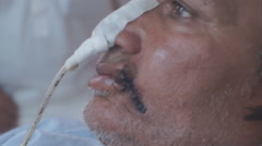 Oral Cancer Patient close up Stock Footage