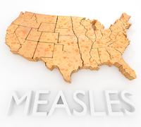 Measles Return To The US Stock Illustration
