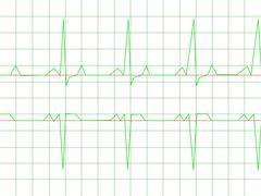 Normal Heart Rhythm - stock illustration